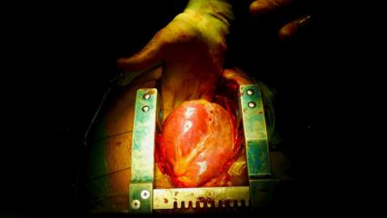 Trasplantes: casi tres de cada diez pacientes mueren antes de ingresar a la lista de espera